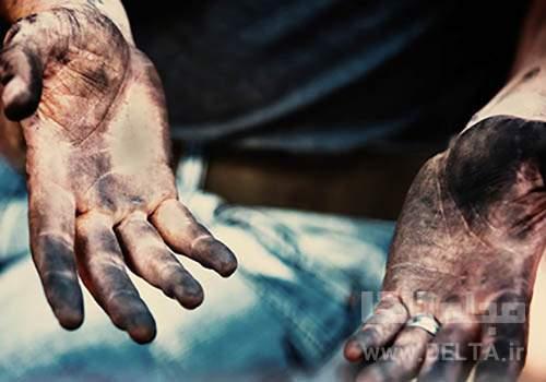 اعضای بدن که نباید با دست کثیف لمس گردد