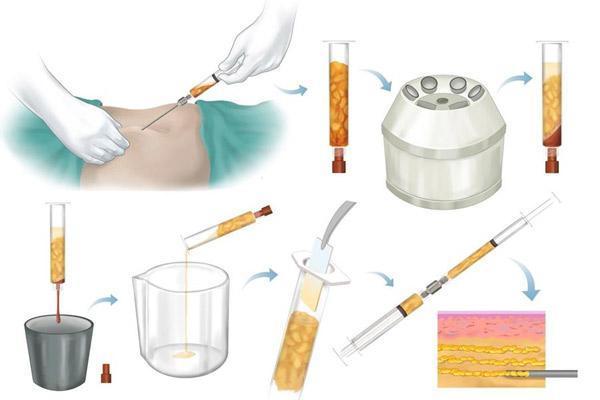 تزریق چربی؛ نحوه انجام، موارد استفاده، مزایا و عوارض