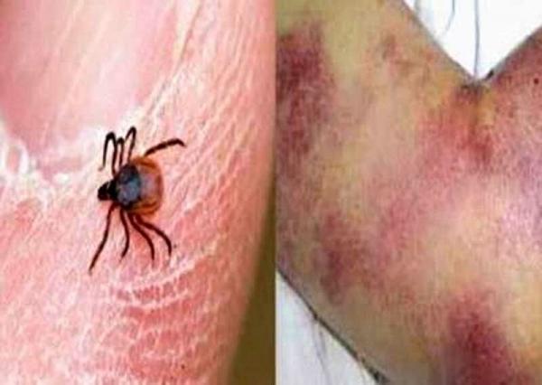 هشدار دامپزشکی تهران درباره شیوع تب کریمه کنگو در دامداری ها